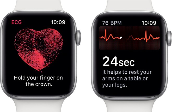 ecg apple watch