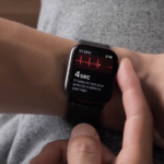 Apple Watch Eletrocardiograma