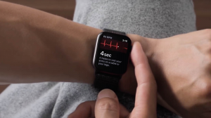 Apple Watch Eletrocardiograma