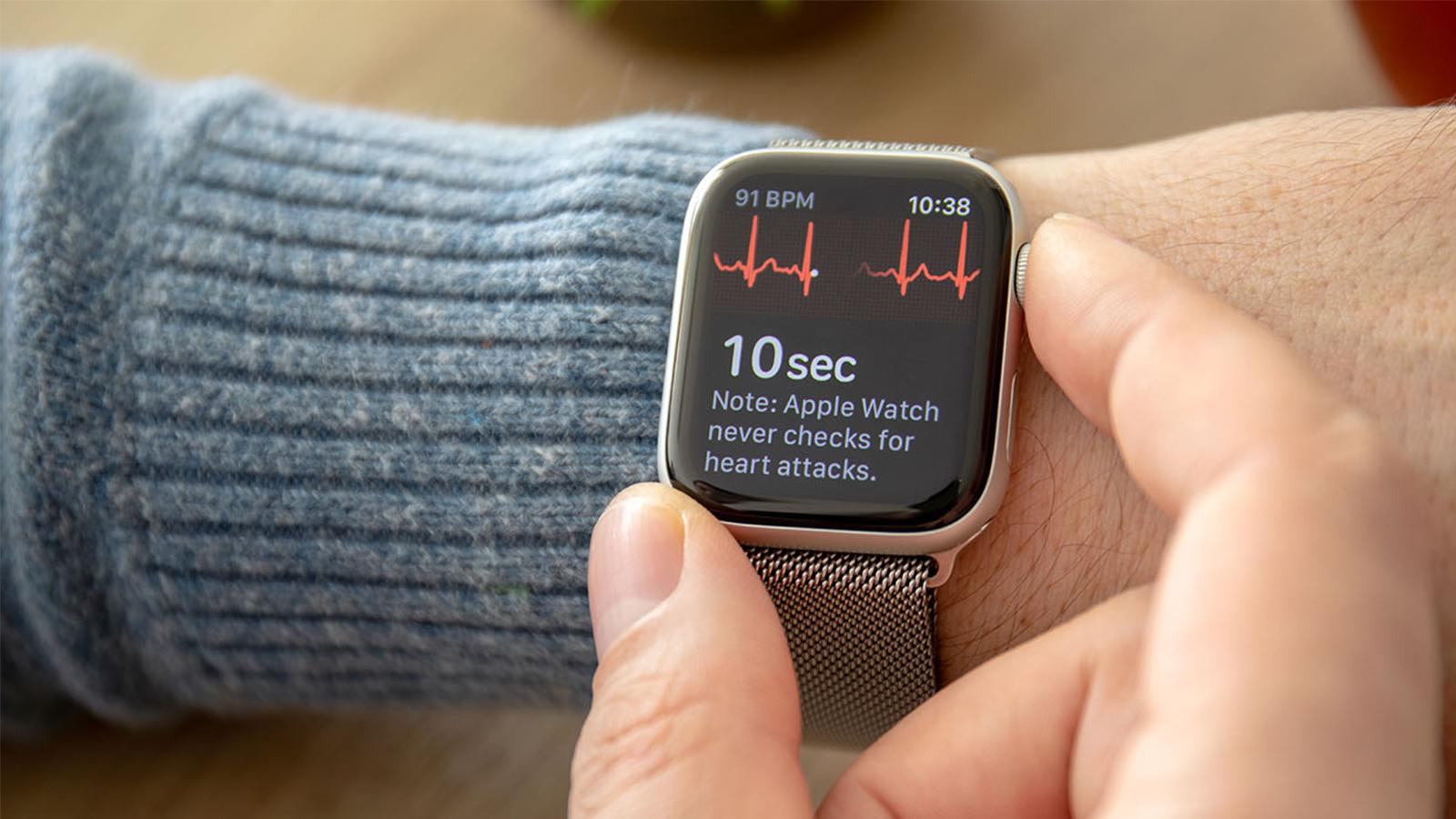 Ecg apple watch