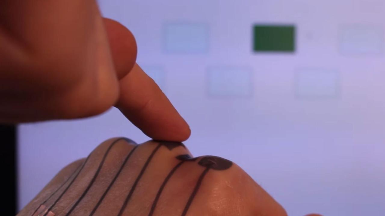 skinmarks