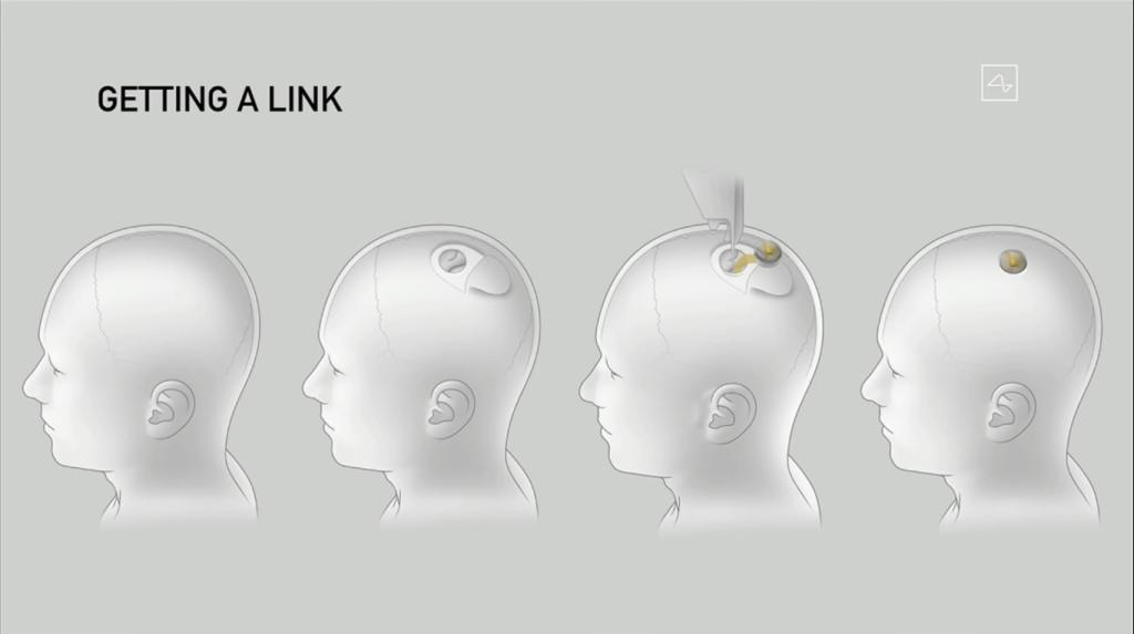 Processo que exemplifica a cirurgia de implante do Neuralink: a empresa diz que ela não dura mais de uma hora e não exige nem anestesia geral (Captura de Imagem: Rafael Arbulu/Showmetech)