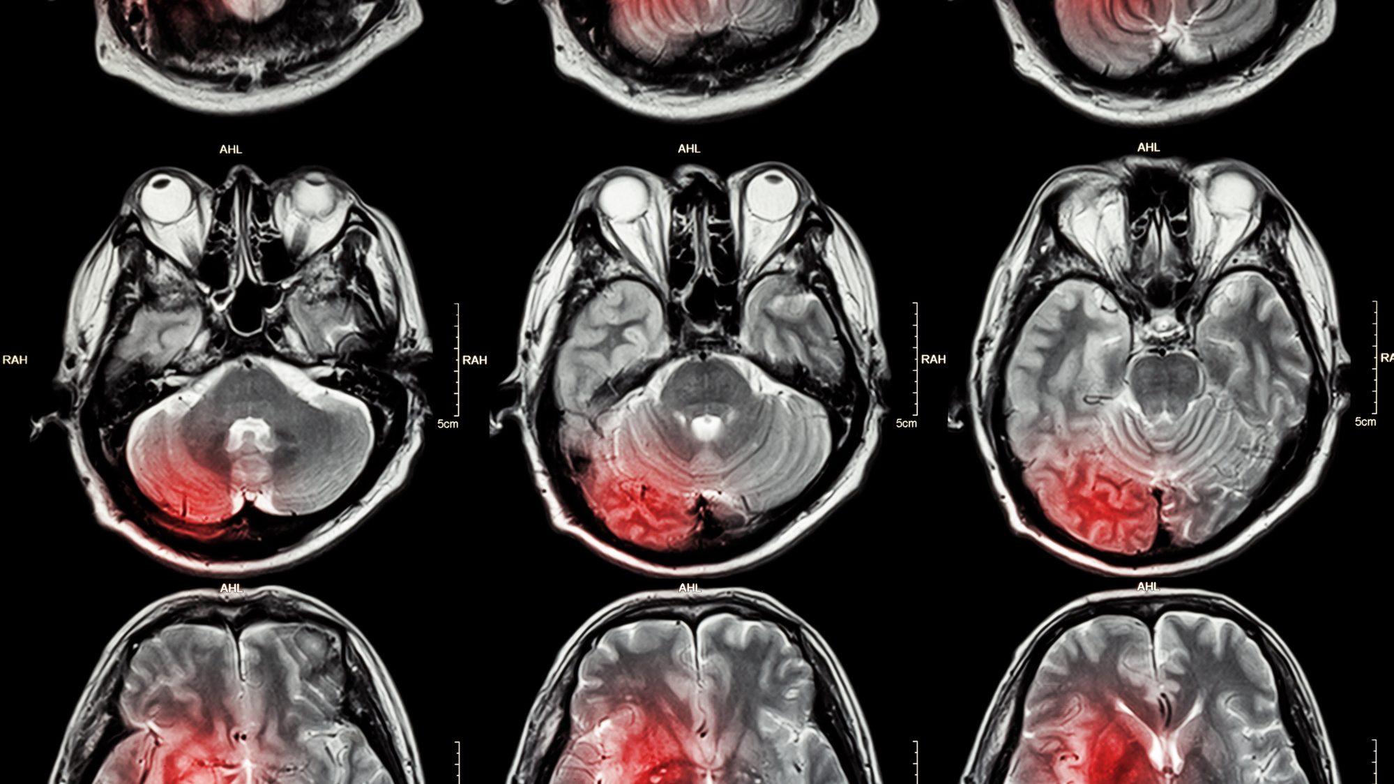 Futuro do tratamento contra o câncer
