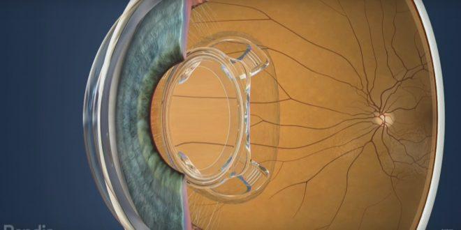 Lentes de contato biônicas tornam sua visão 3 vezes melhor. As lentes biônicas foram criadas para eliminar alguns problemas da visão como catarata, glaucoma, miopia, hipermetropia e astigmatismo
